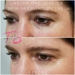 skin needling before and after showing reduced crows feet after 1 session