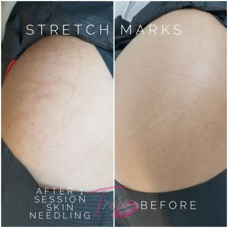 Before and after image of stretch mark healing