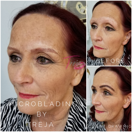 Before and after photo showing shape correction of eyebrows with microblading