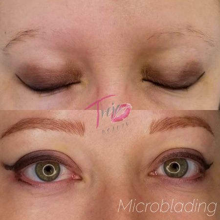 microblading on a trichotillomania client